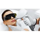 onde encontro depilação a laser buço Vila São Rafael
