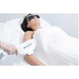 onde encontro depilação a laser corpo todo Vila Santa Maria