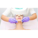 onde encontro limpeza de pele dermatologista Jardim Olavo Bilac