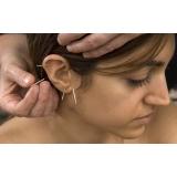 quanto custa acupuntura auricular estética Jardim Ana Sofia