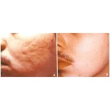 quanto custa acupuntura estética acne Jardim novo horizonte