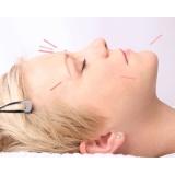 quanto custa acupuntura estética para o rosto Parque Santo Antonio