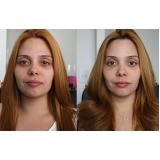 quanto custa acupuntura estética para olheiras Vila Lutécia