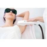 quanto custa depilação a laser axila Parque Andreense