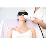 quanto custa depilação a laser buço Vila Alba