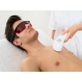 quanto custa depilação a laser para homens Campanário